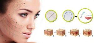 Căng chỉ collagen - làm đẹp căng da mặt bằng chỉ collagen